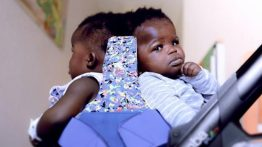 Afrikalı Siyam İkizleri 18 Saatlik Operasyonla Ayrıldı