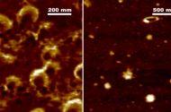 Covid-19 Yerli Süper Mikroskopla Görüntülendi
